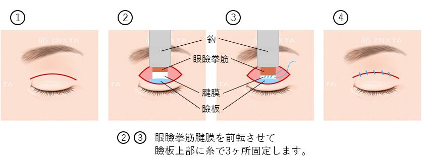 眼瞼下垂術とは