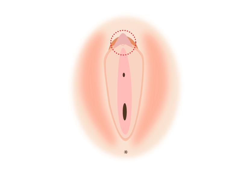 陰核(クリトリス)包茎とは
